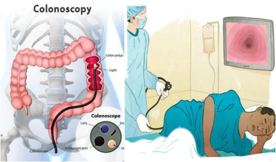 Картинка проведения колоноскопии