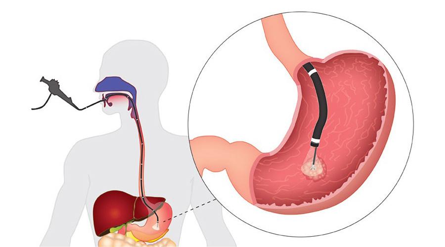 Изображение ФГДС с биопсией
